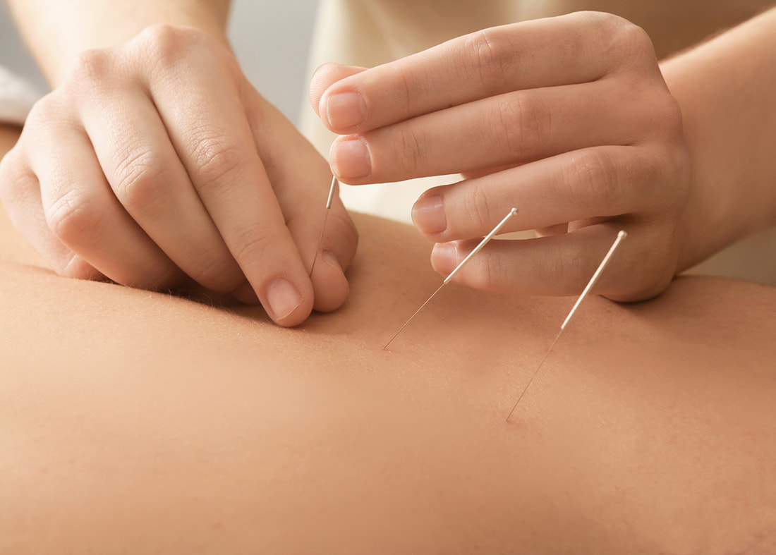 Dry Needling Might Just Give You The Edge That You Need